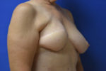 Reconstructive Revision Breast Surgery