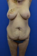 Breast Implants with Lift
