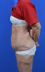 Bariatric Abdominoplasty